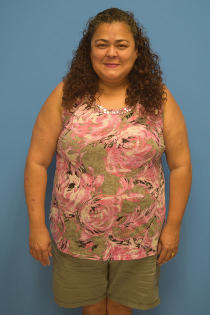 Gastric Bypass Before & After Patient #340