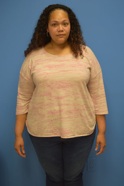 Gastric Sleeve Before & After Patient #400