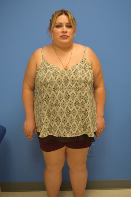 Gastric Sleeve Before & After Patient #518
